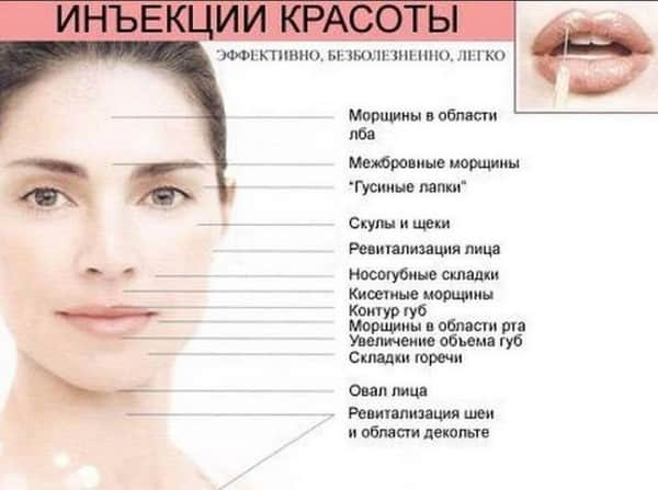 Мезотерапия лица фото