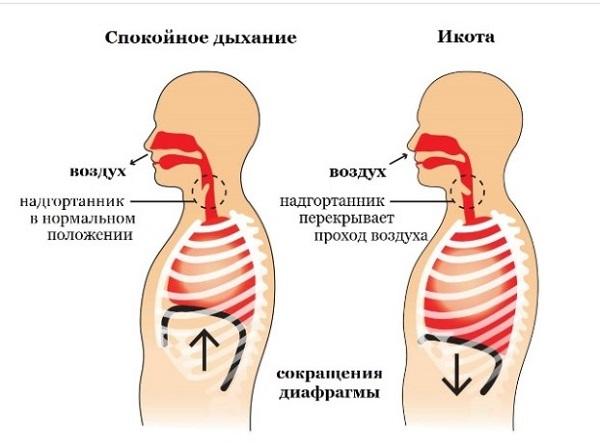 Дыхательная гимнастика при икоте